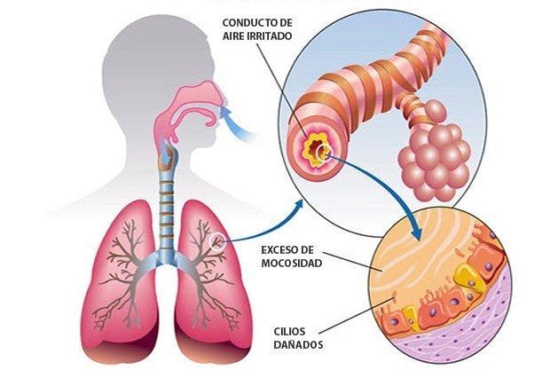 dibujo pulmones bronquitis